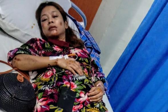 Rahmadina penuh luka usai dijambret di Underpass Titikuning Medan. Foto: Istimewa