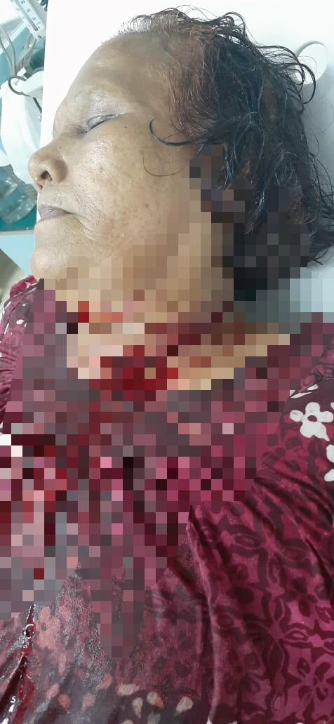 Korban, Sortaria Silitonga (60) saat dibawa ke Rumah Sakit. Foto: istimewa